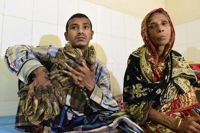 Abul Bajandar, está hospitalizado a la espera de que los médicos le extirpen las verrugas gigantes.