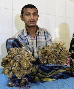 El 'hombre-árbol' de Bangladesh quiere que le quiten sus 'ramas'