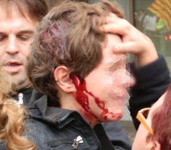 Los Mossos investigan el porrazo a un ni�o en Tarragona
