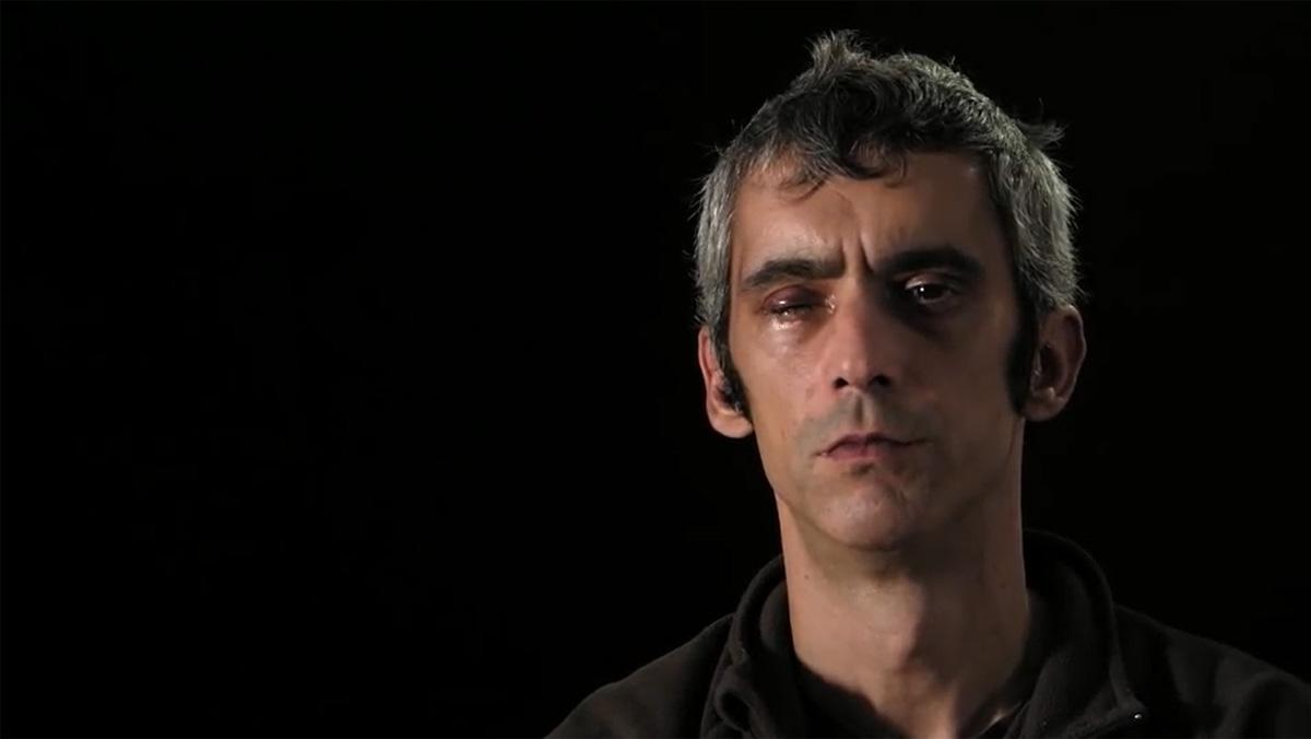 Roger Español, lhome que va perdre la visió dun ull per una pilota de goma l1-O