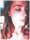 �Amber Heard, con las heridas en el rostro que le caus� Johnny Depp al lanzarle un tel�fono.