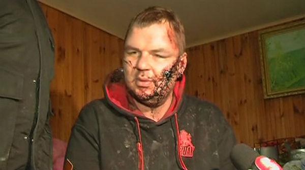 Un opositor ucraniano torturado tengo agujeros en las for Agujeros en el cuerpo