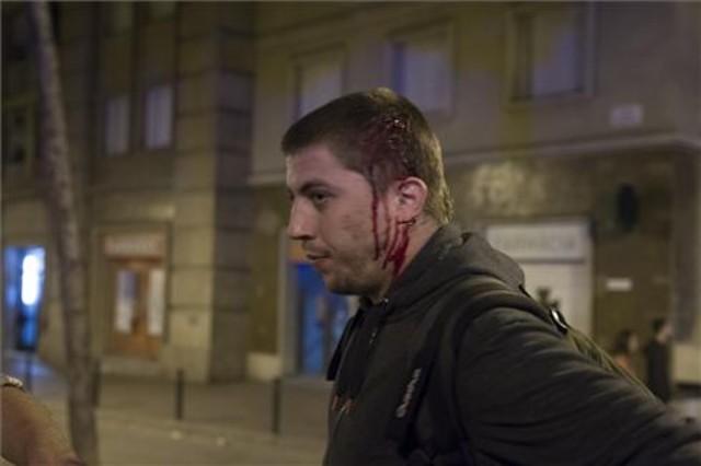 Persona ferida després dels disturbis de Can Vies al barri de Sants