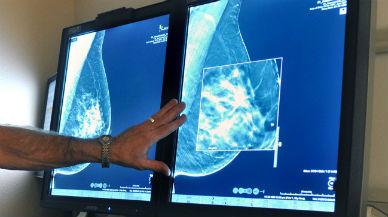 Un estudio apunta que el azar causa dos tercios de los cánceres