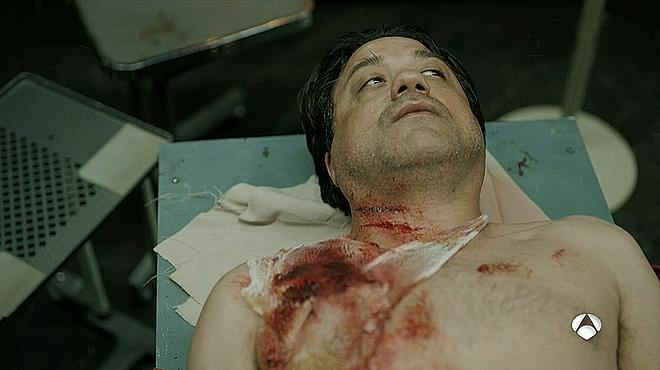 Arturo (Enrique Arce) herido gravemente en 'La casa de papel'.