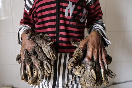 El 'hombre-�rbol' de Bangladesh quiere que le quiten sus 'ramas'