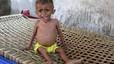 La ONU cifra en 10.000 los civiles muertos en la guerra del Yemen