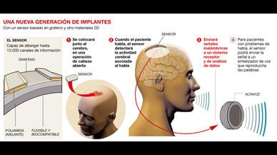 La nanotecnología alumbra una nueva generación de implantes cerebrales