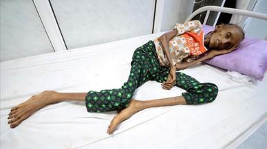 """L'ONU qualifica d'""""impactant"""" la crisi humanitària al Iemen"""