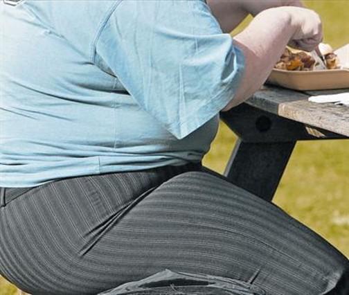 La sanidad inglesa plantea excluir a obesos y fumadores de la cirugía rutinaria