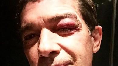 Així li ha quedat la cara a Antonio Banderas