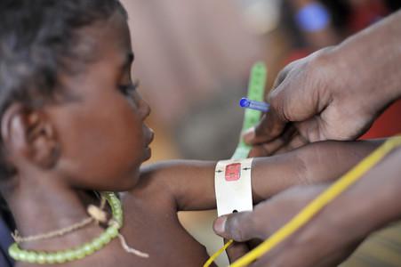 �frica malnutrici�n