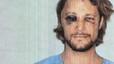 El ex de Halle Berry acaba con la cara desfigurada tras la pelea con Olivier Martínez