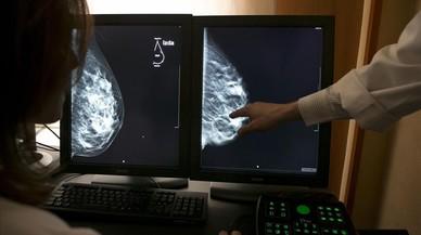 Els metges demanen que la cirurgia del càncer de mama inclogui bon resultat estètic