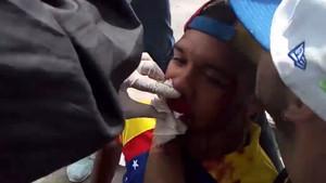 Willy Arteaga, herido.