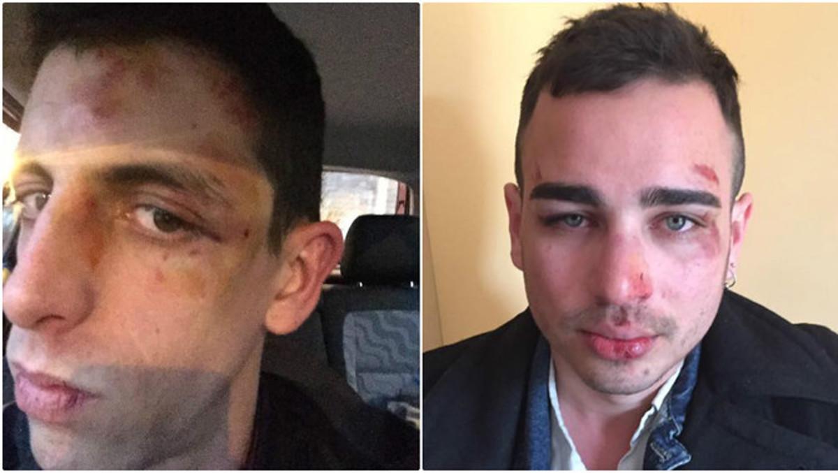 Dos homosexuales agredidos en Berga
