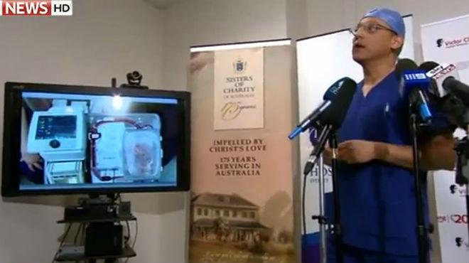 M�dicos australianos trasplantan con �xito corazones que ya no lat�an