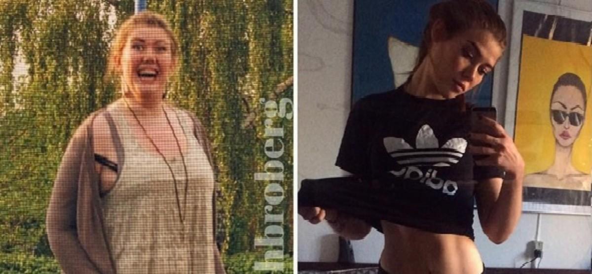 Una joven danesa adelgaza engañando a su cerebro al comer con una cucharilla de café