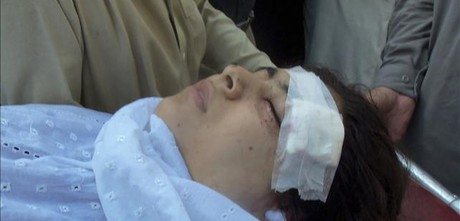 Malala Yousufzai, asistida en un hospital local del valle de Swat.