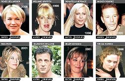 Otros famosos desfigurados por el bistur�