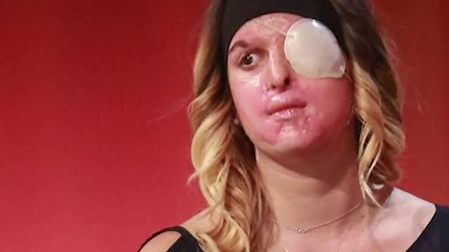 El testimoni a la televisió d'una model atacada amb àcid per la seva exparella commociona Itàlia