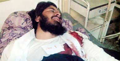 Un suicida causa una masacre en un partido de voleibol en Afganist�n