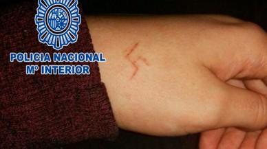 Sis ultres detinguts per gravar a foc una esvàstica a la mà a una menor