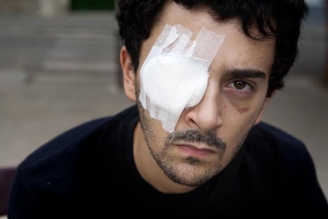 El juez imputa a dos mossos por el lanzamiento de pelotas de goma que hirieron a un joven en el 2010