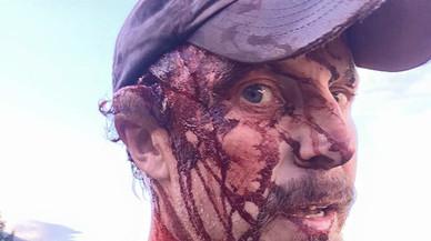 Un home sobreviu a l'atac d'una ossa i grava un vídeo mostrant les ferides