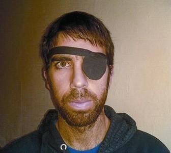 COMPROMETIDO. Oleguer posa con un parche en el ojo en la campaña contra las pelotas de goma.