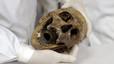Los huesos del nazi Mengele, utilizados para estudiar medicina forense en Brasil