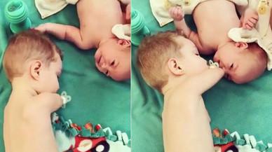 Un nen sense mans li posa el xumet al seu germà per tranquil·litzar-lo