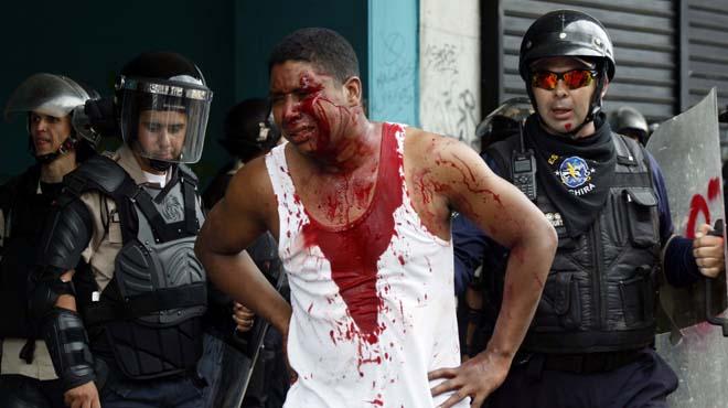 Un joven ha recibido un disparo en la cabeza, al parecer por parte de paramilitares leales al Gobierno.