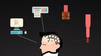 Un 'módem cerebral' busca conectar personas y ordenadores para revertir discapacidades