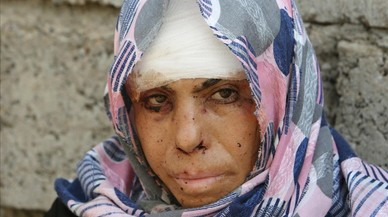 lpedragosa35329819 an injured displaced woman from qayyara poses for a picture 160830224347