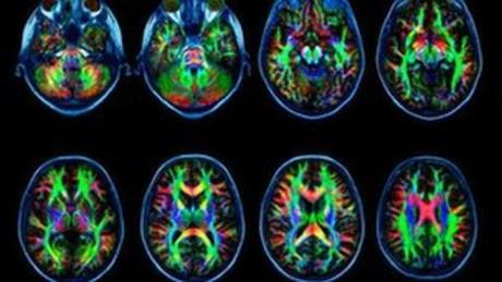 Escáneres cerebrales de la materia blanca del cerebro.