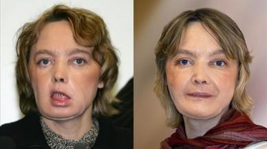 Isabelle Dinoire, en su primera aparici�np�blica tras someterse al trasplante, en febrero del 2006 (izquierda), y nueve meses despu�s.
