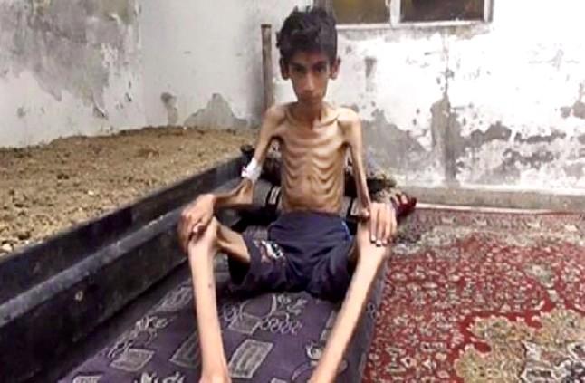 La gente come hojas de los �rboles para sobrevivir en Madaya