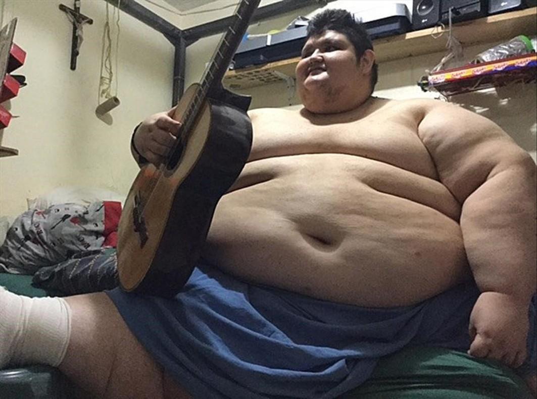 Juan Pedro, quien con 500 kilos ya se le conoce como el hombre mas obeso del planeta.