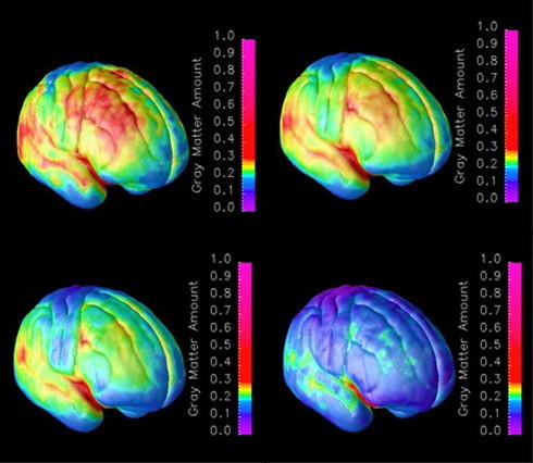 La educación, el estado ánimo y el estatus social influyen en el envejecimiento del cerebro