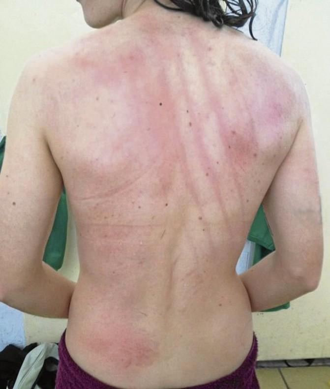 Brutal paliza a las jugadoras del Cáceres