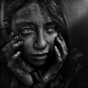 El rostro de la miseria