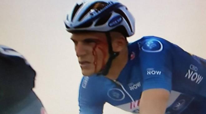 Marcel Kittel, con la cara ensangrentada en el Tour de Dubái, tras recibir un codazo de Andriy Grivko.