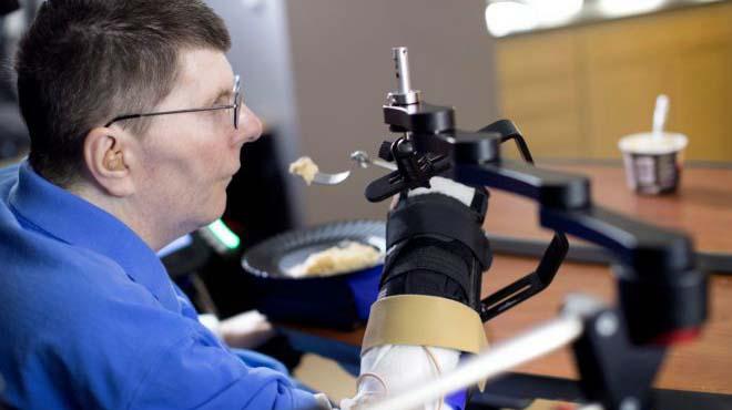 El paciente ha recuperado parte de su autonomía gracias al implante.