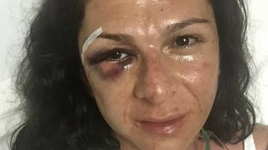 L'atleta Ana Guevara pateix una fractura de pòmul al ser agredida