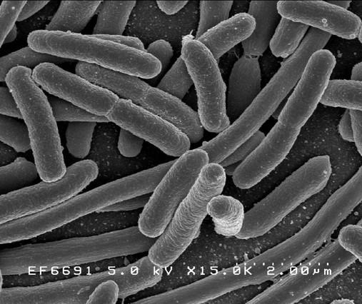 'Escherichia coli', una de las muchas especies de bacterias presentes en el intestino humano.