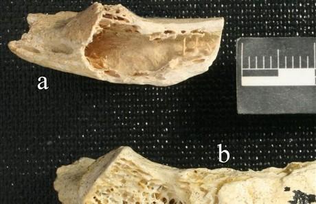 Huesos de Neanderthal afectados por el cáncer.