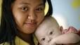 Una parella australiana abandona el nadó amb síndrome de Down d'una mare de lloguer