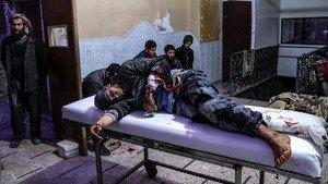 Un herido en un bombardeo en Guta es atendido en un hospital de Duma