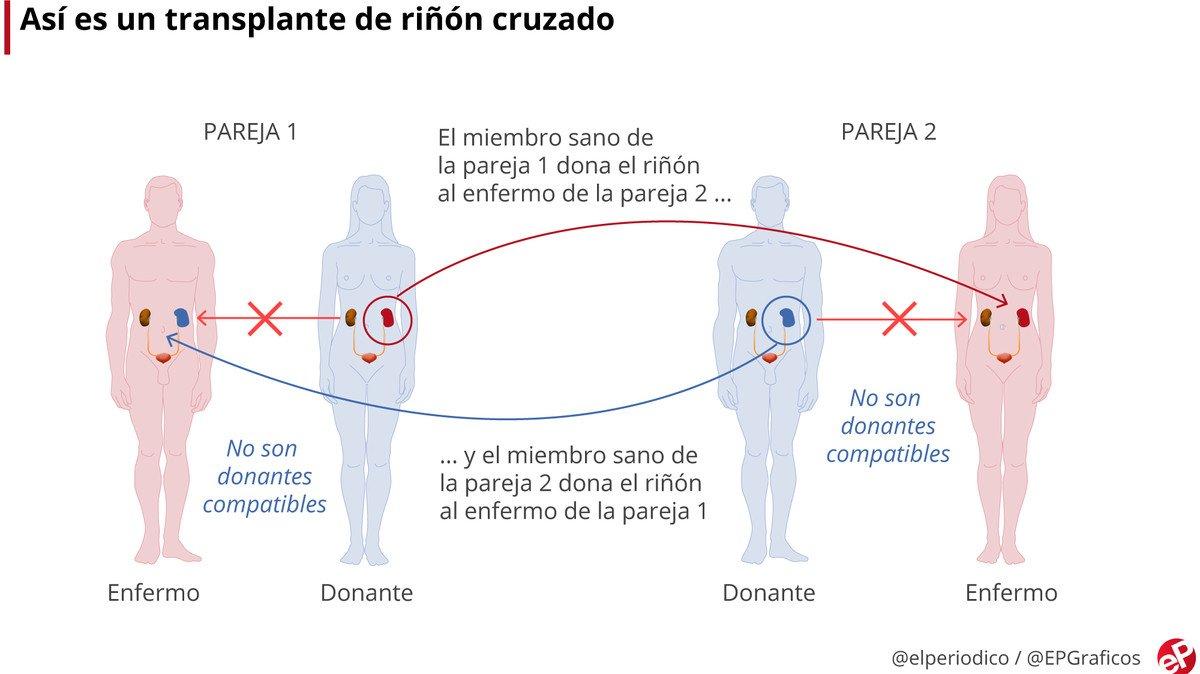 Tres hospitales culminan una cadena de tres trasplantes cruzados de riñón